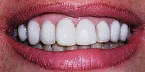 Caso real de carillas de composite, un tratamiento de estética dental muy eficaz
