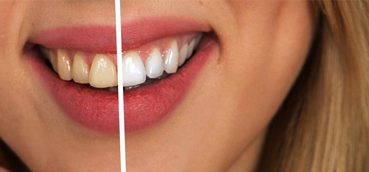 Por qué los dientes se vuelven amarillos