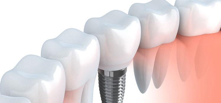 7 preguntas y respuestas sobre los implantes dentales
