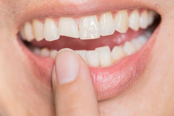 Dr Jorge Ferre Jorge Opiniones Dentista Dentista Infantil